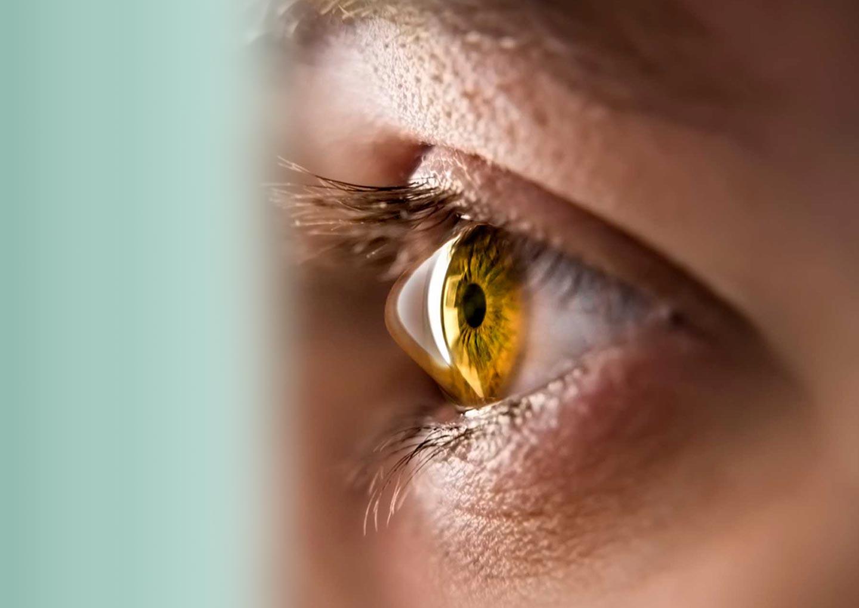 Căutarea miopiei și prevenirea acesteia